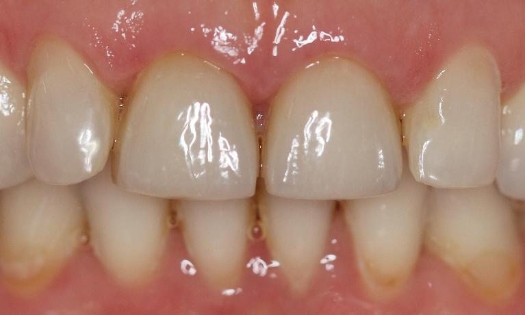 Ceramic-veneers-After-Image